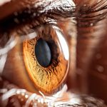 Post concussion syndrome patient experiences irregular eye movements in Ontario